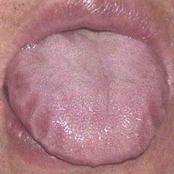 язык с отпечатками от зубов
