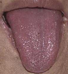 язык фиолетовый